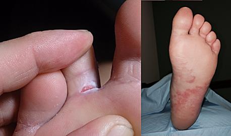 Jalaseenega nakatutud Jalatald ja varvas