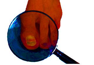Küüneseen-pilt